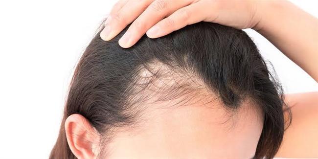 المينوكسيديل.. الحل السحري لمشكلة تساقط الشعر