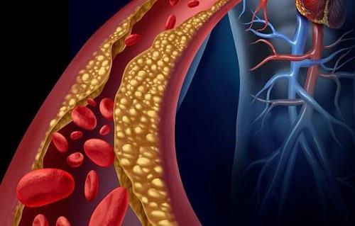 5 طرق لتجنب زيادة نسبة الكوليسترول في الدم