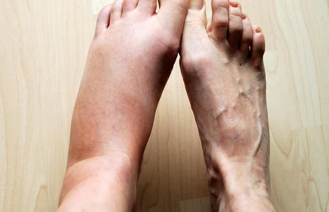 """إشادة بمبادرة """"قدم صحيح"""".. أطباء: تخفف الأعباء عن مرضي القدم السكري"""